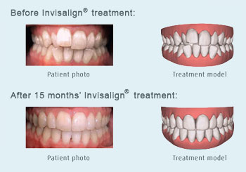 Invisalign Teen System Was Designed 71